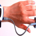 US Wearable Medical Devices Market