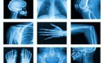 India Diagnostic Imaging Market