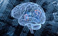Brain Implants Market - TechSci Research