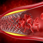 United States Stent Market - TechSci Research