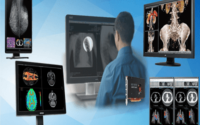 United States Medical Imaging Monitor Market - TechSci Research